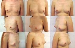 Brustvergrösserung mit stammzellangereichertem Eigenfett