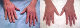 Hautregeneration mit Stammzellen an den Händen