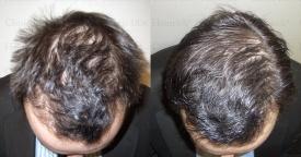 Haartherapie mit Wachstumsfaktoren