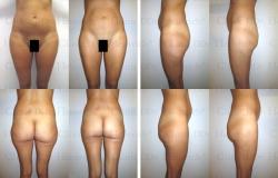 Fettabsaugung mit Mikrokanülen an Bauch, Hüften, Gesäss und Aussenschenkeln