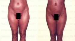 Fettabsaugung mit Mikrokanülen an Bauch, Hüften und Aussenschenkeln