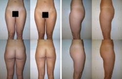 Fettabsaugung mit Mikrokanülen an Taille, Hüften, Gesäss, Aussenschenkeln und Innenschenkeln