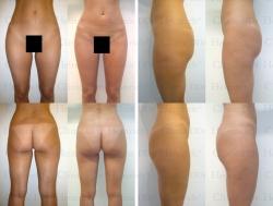Fettabsaugung mit Mikrokanülen an Hüften, Gesäss, Aussenschenkeln und Innenschenkeln
