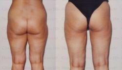 Fettabsaugung mit Mikrokanülen an Aussenschenkeln, Innenschenkeln und Knien
