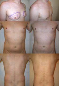 Fettabsaugung mit Mikrokanülen an Brust, Bauch und Hüften