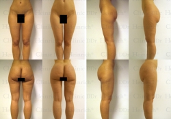 Fettabsaugung mit Mikrokanülen an Hüften, Gesäss, Aussenschenkeln, Innenschenkeln und Unterschenkeln